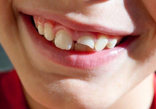 Τι Πρέπει να Κάνω όταν Σπασει ένα Δόντι στο Ύψος των Ούλων
