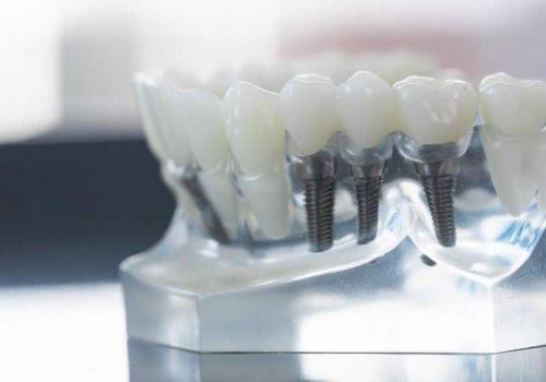 Γιατί Ορισμένα Οδοντικά Εμφυτεύματα Αποτυγχάνουν Και Πώς Να Το Αποφύγετε