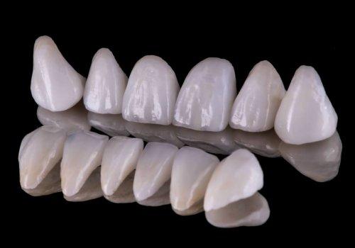 Οδοντικές Όψεις έναντι Στεφανών. Ποια είναι η Διαφορά και ποια είναι η Σωστή Λύση για εσάς;